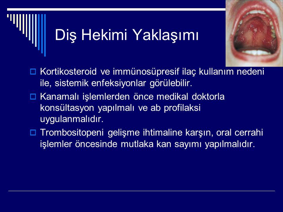 Diş Hekimi Yaklaşımı Kortikosteroid ve immünosüpresif ilaç kullanım nedeni ile, sistemik enfeksiyonlar görülebilir.
