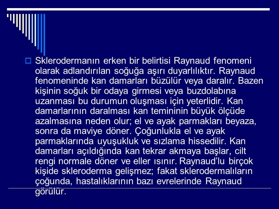 Sklerodermanın erken bir belirtisi Raynaud fenomeni olarak adlandırılan soğuğa aşırı duyarlılıktır.