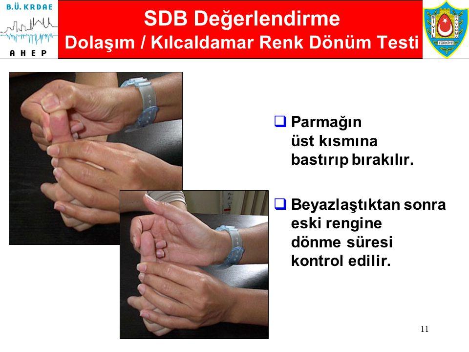 SDB Değerlendirme Dolaşım / Kılcaldamar Renk Dönüm Testi