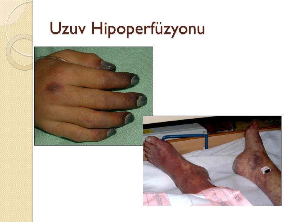 Uzuv Hipoperfüzyonu