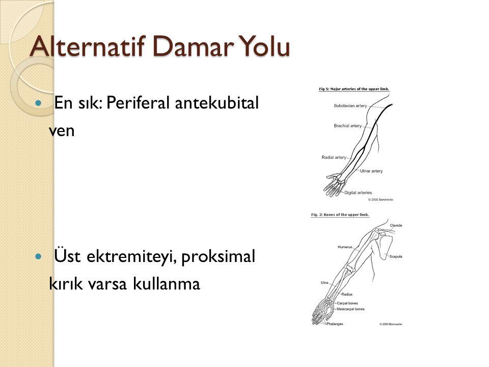 Alternatif Damar Yolu En sık: Periferal antekubital ven