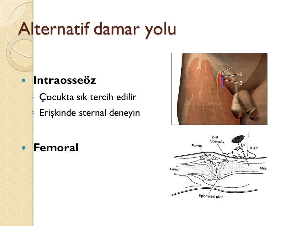 Alternatif damar yolu Intraosseöz Femoral Çocukta sık tercih edilir