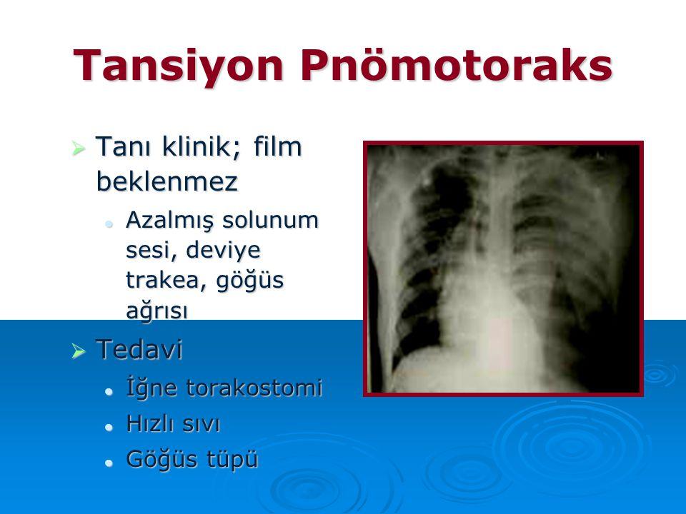 Tansiyon Pnömotoraks Tanı klinik; film beklenmez Tedavi