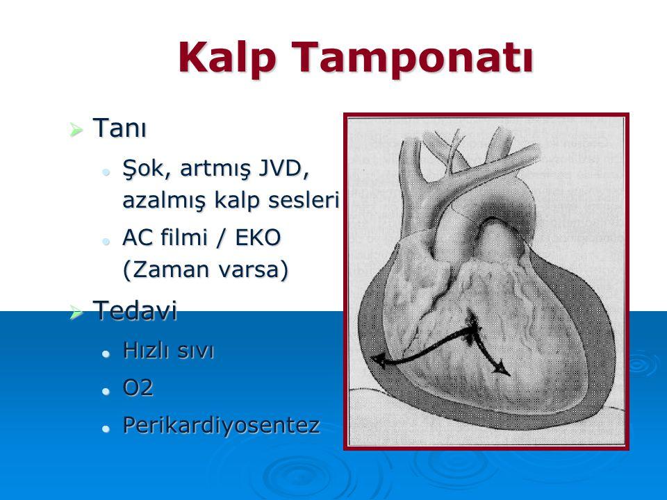 Kalp Tamponatı Tanı Tedavi Şok, artmış JVD, azalmış kalp sesleri