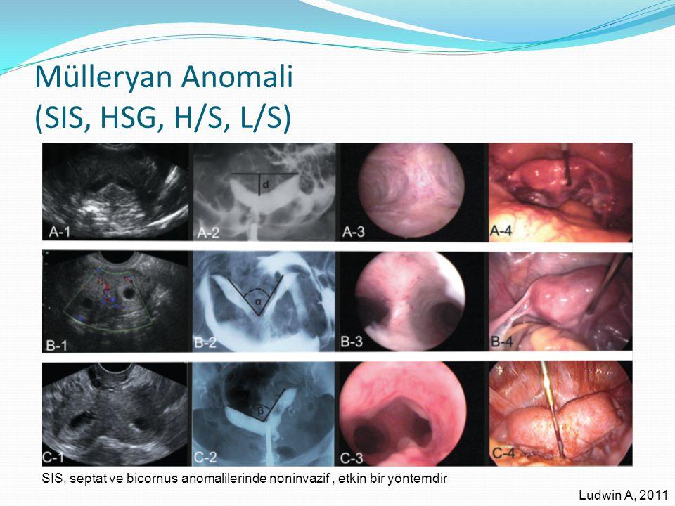 Mülleryan Anomali (SIS, HSG, H/S, L/S)