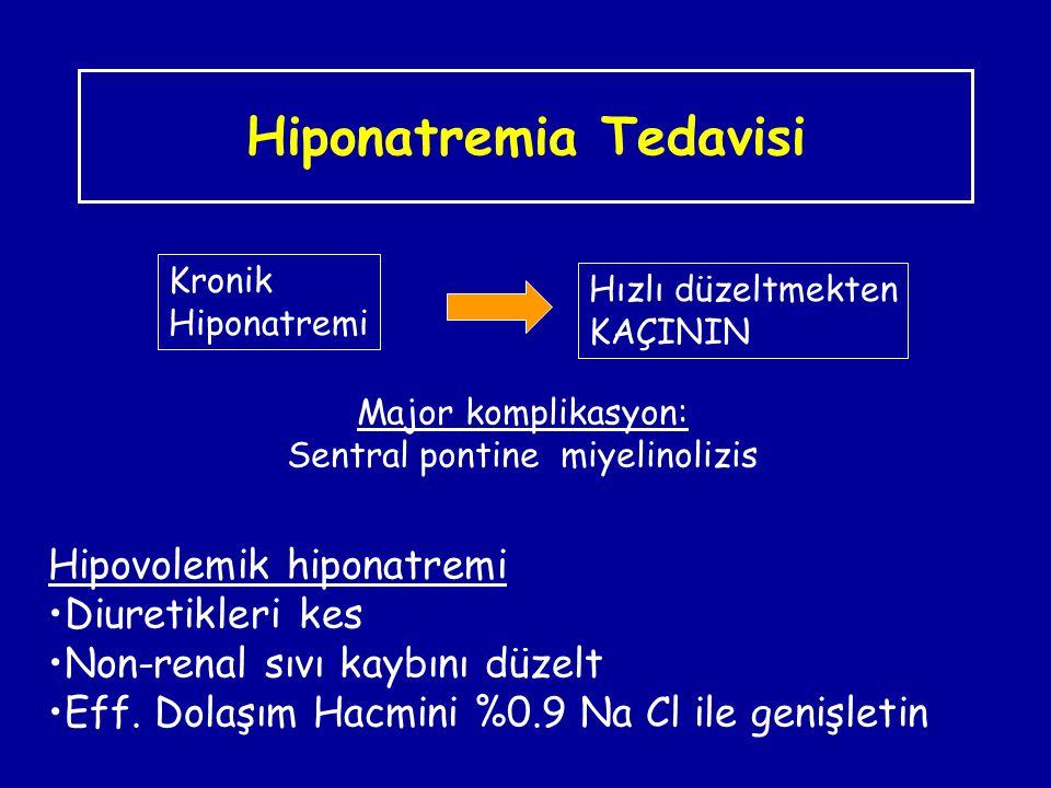 Hiponatremia Tedavisi