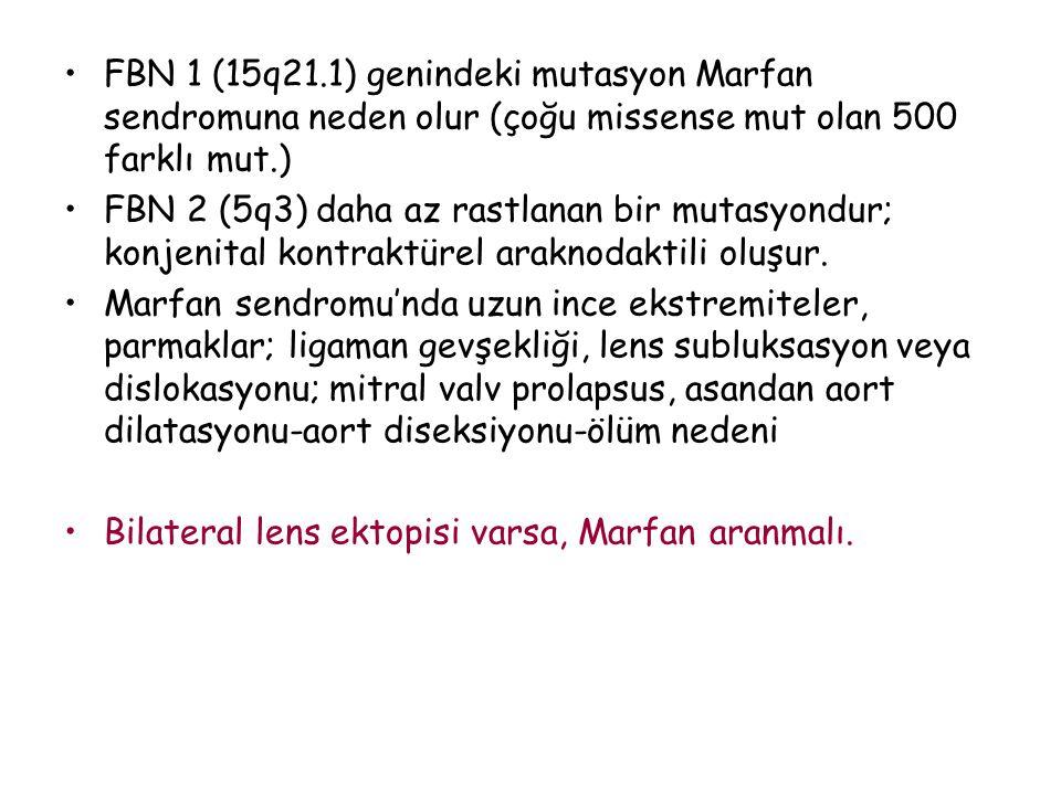 FBN 1 (15q21.1) genindeki mutasyon Marfan sendromuna neden olur (çoğu missense mut olan 500 farklı mut.)