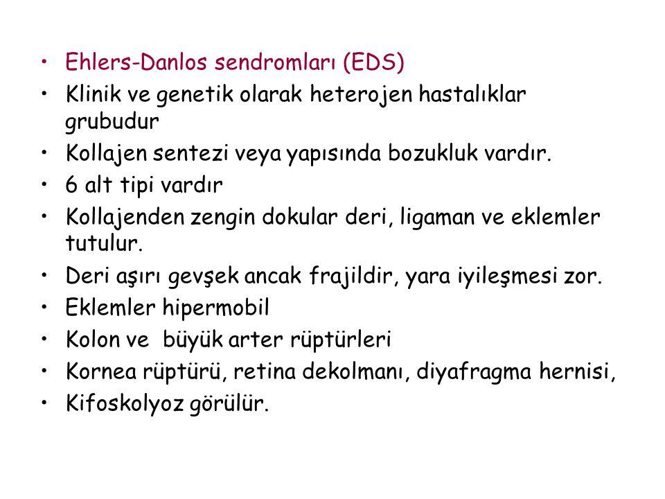 Ehlers-Danlos sendromları (EDS)