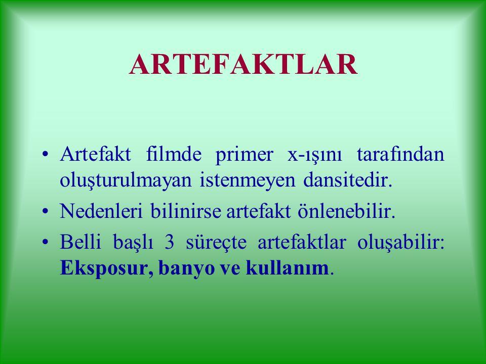 ARTEFAKTLAR Artefakt filmde primer x-ışını tarafından oluşturulmayan istenmeyen dansitedir. Nedenleri bilinirse artefakt önlenebilir.