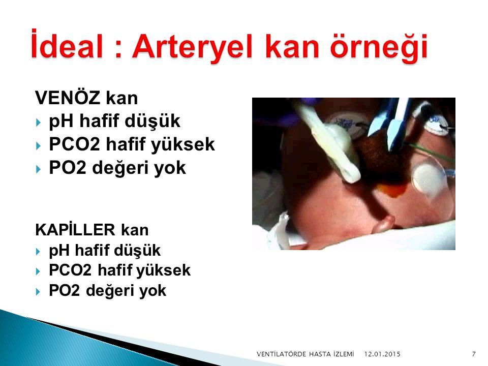 İdeal : Arteryel kan örneği