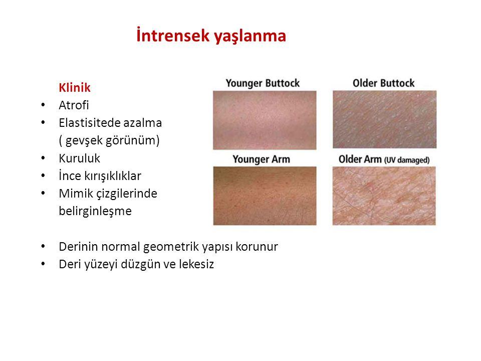 İntrensek yaşlanma Klinik Atrofi Elastisitede azalma ( gevşek görünüm)