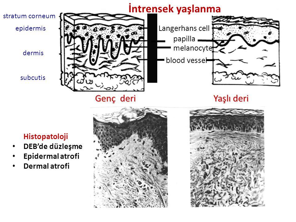 İntrensek yaşlanma Genç deri Yaşlı deri Langerhans cell papilla