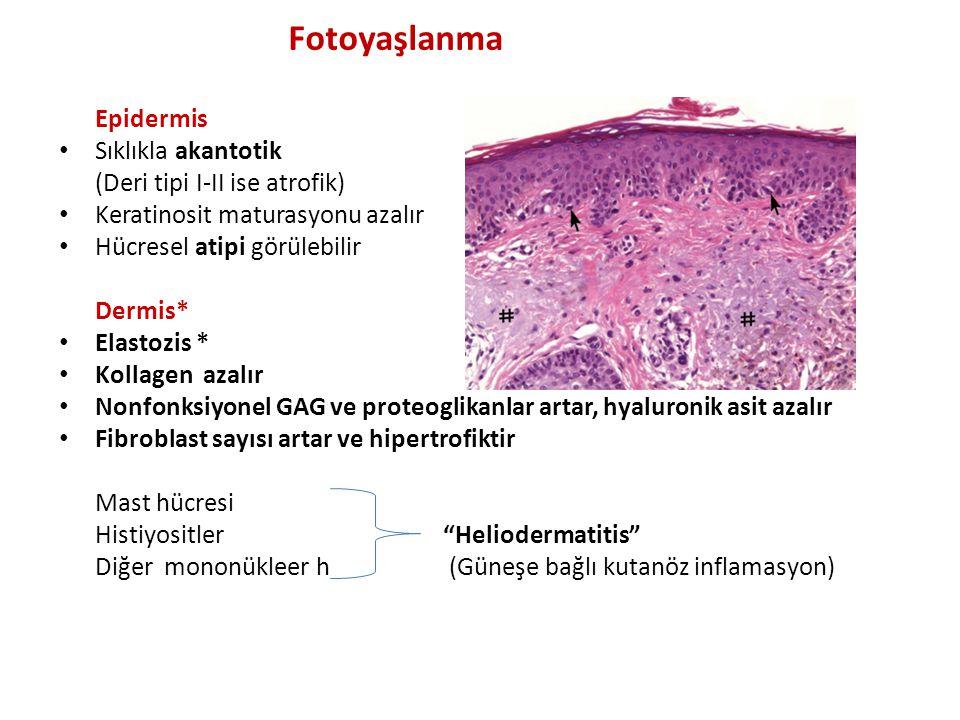 Fotoyaşlanma Epidermis Sıklıkla akantotik (Deri tipi I-II ise atrofik)