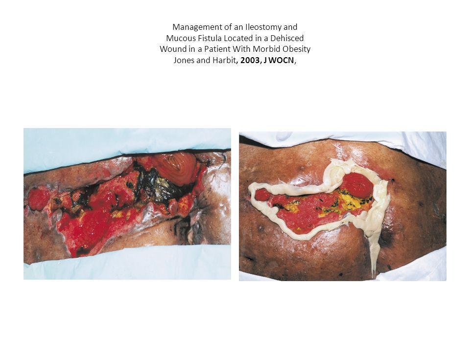 Management of an Ileostomy and Mucous Fistula Located in a Dehisced Wound in a Patient With Morbid Obesity Jones and Harbit, 2003, J WOCN,