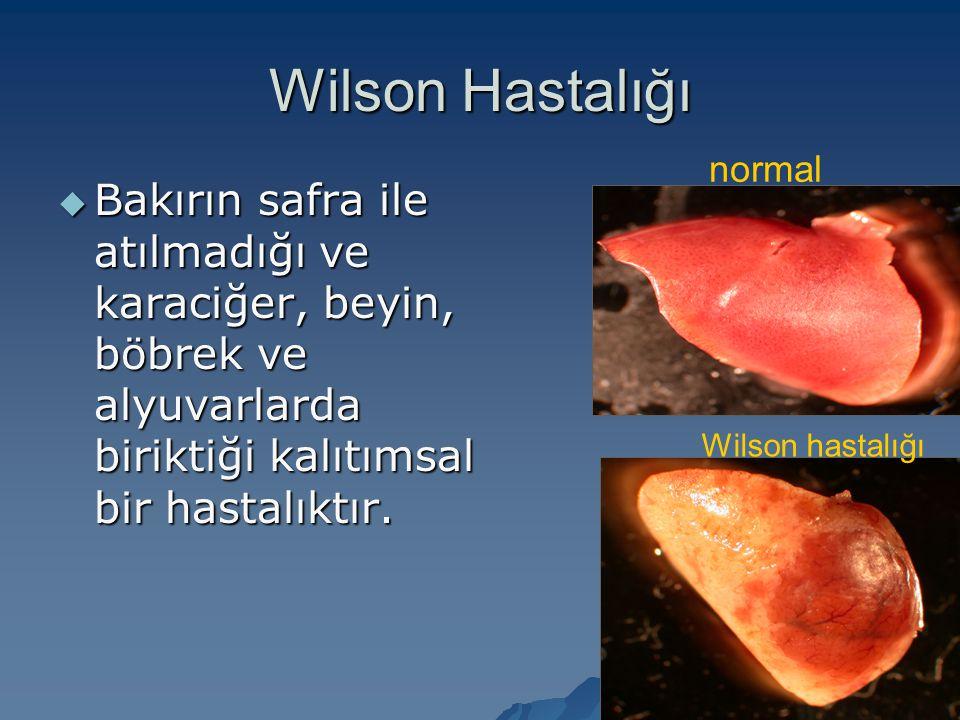Wilson Hastalığı normal. Bakırın safra ile atılmadığı ve karaciğer, beyin, böbrek ve alyuvarlarda biriktiği kalıtımsal bir hastalıktır.