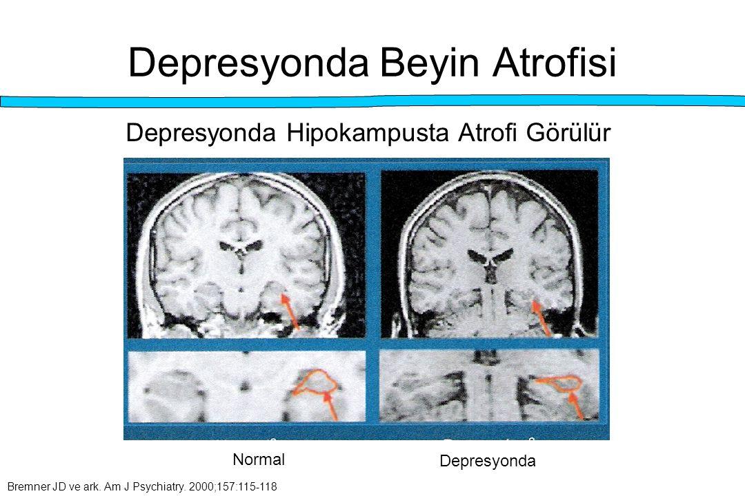 Depresyonda Beyin Atrofisi