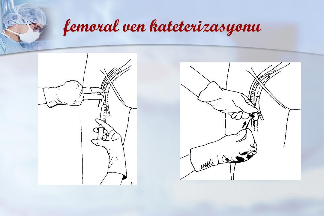 femoral ven kateterizasyonu