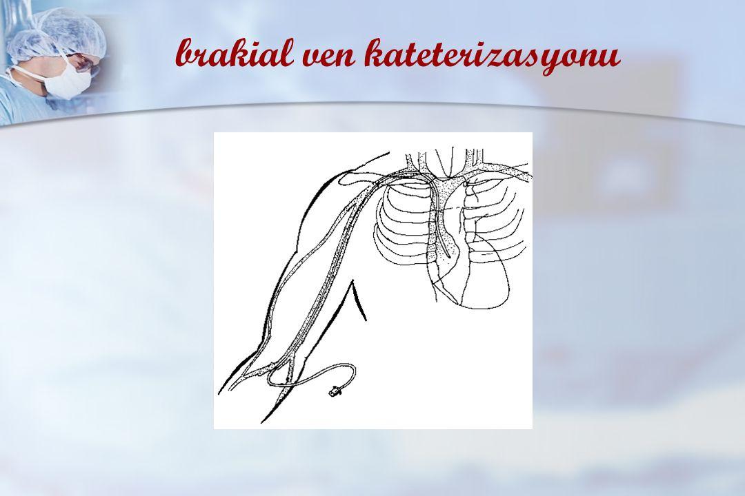 brakial ven kateterizasyonu