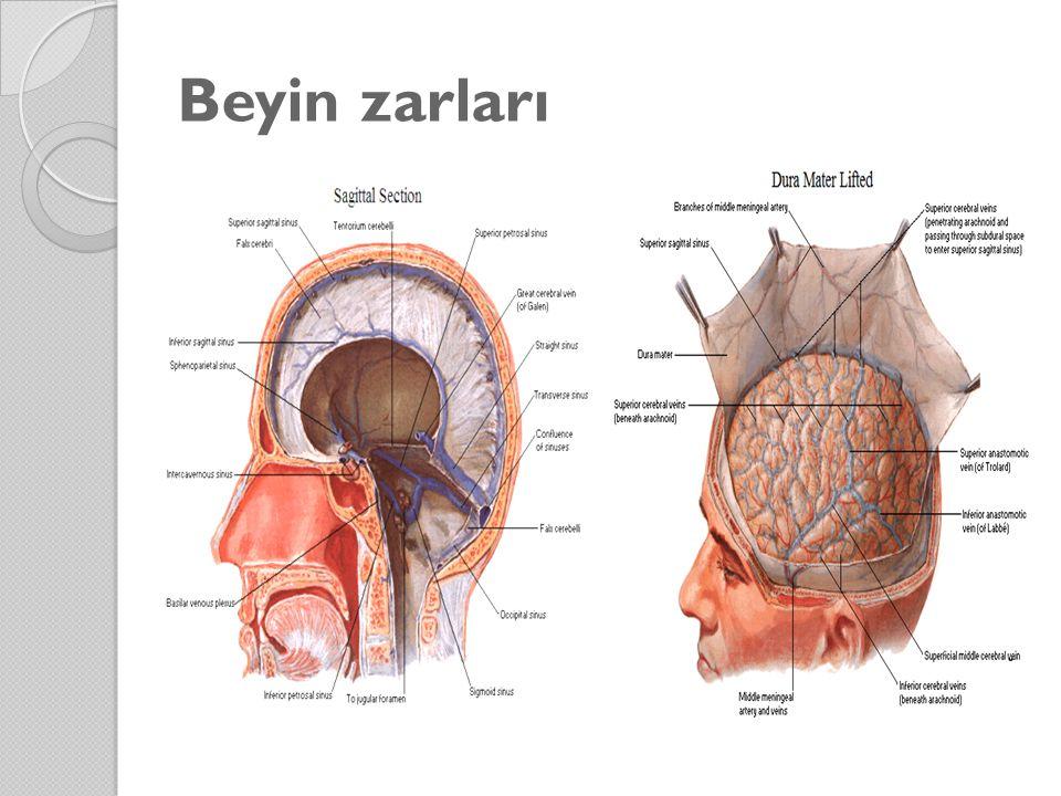 Beyin zarları