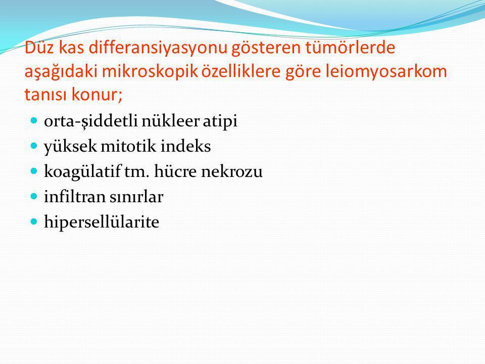 Düz kas differansiyasyonu gösteren tümörlerde aşağıdaki mikroskopik özelliklere göre leiomyosarkom tanısı konur;