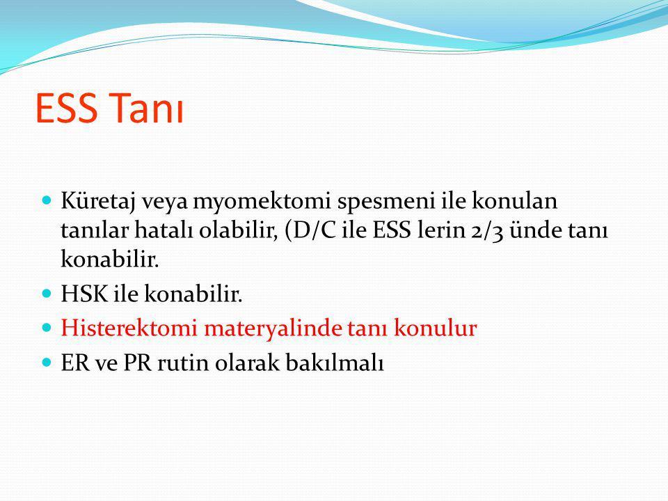ESS Tanı Küretaj veya myomektomi spesmeni ile konulan tanılar hatalı olabilir, (D/C ile ESS lerin 2/3 ünde tanı konabilir.