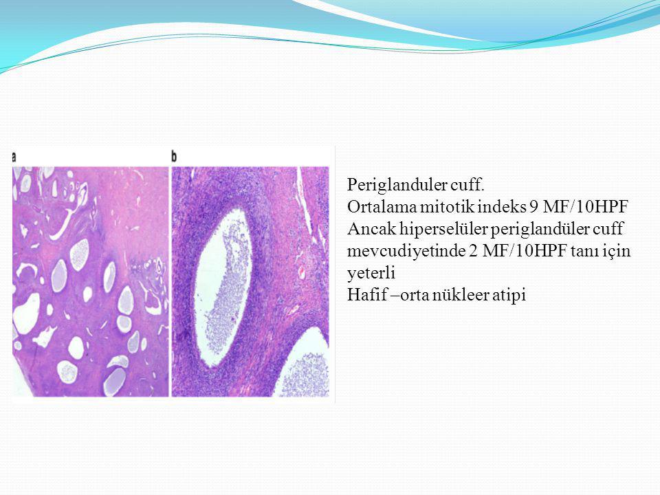 Periglanduler cuff. Ortalama mitotik indeks 9 MF/10HPF. Ancak hiperselüler periglandüler cuff mevcudiyetinde 2 MF/10HPF tanı için yeterli.