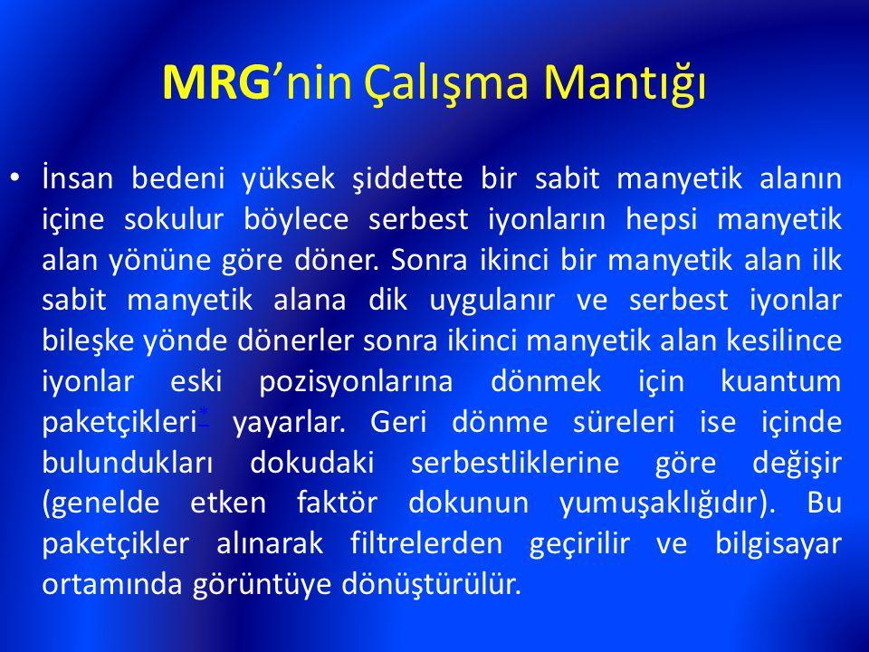 MRG'nin Çalışma Mantığı