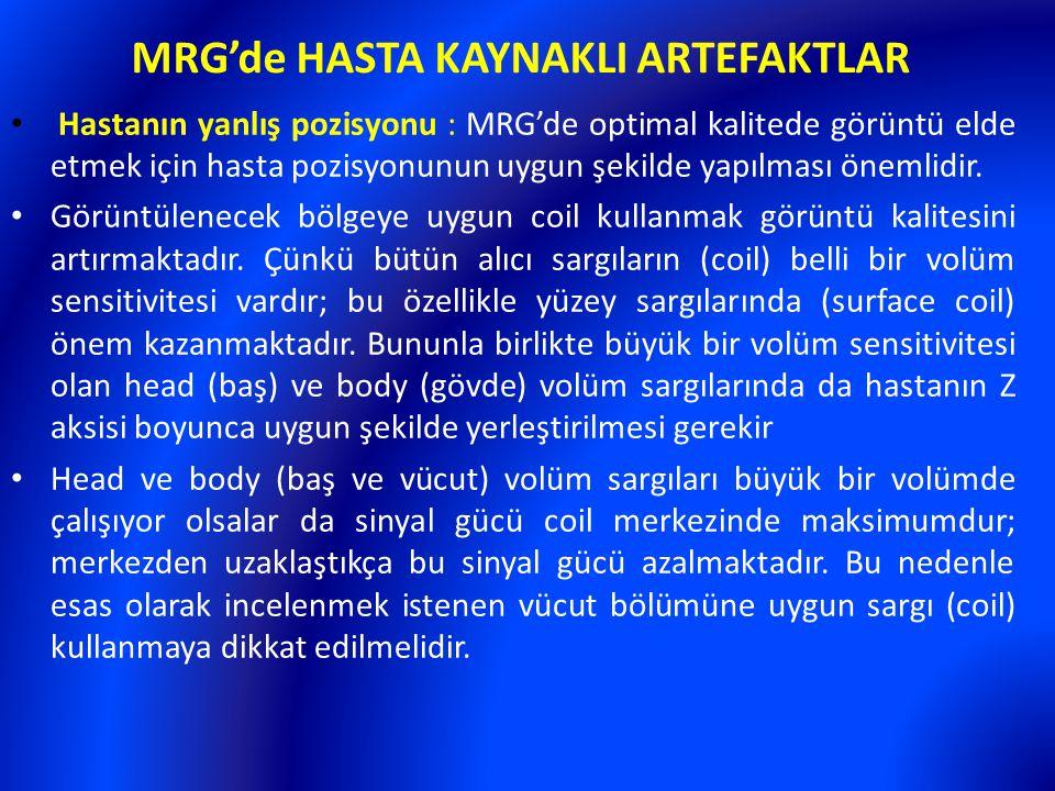 MRG'de HASTA KAYNAKLI ARTEFAKTLAR