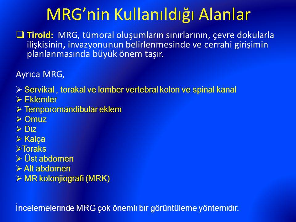 MRG'nin Kullanıldığı Alanlar