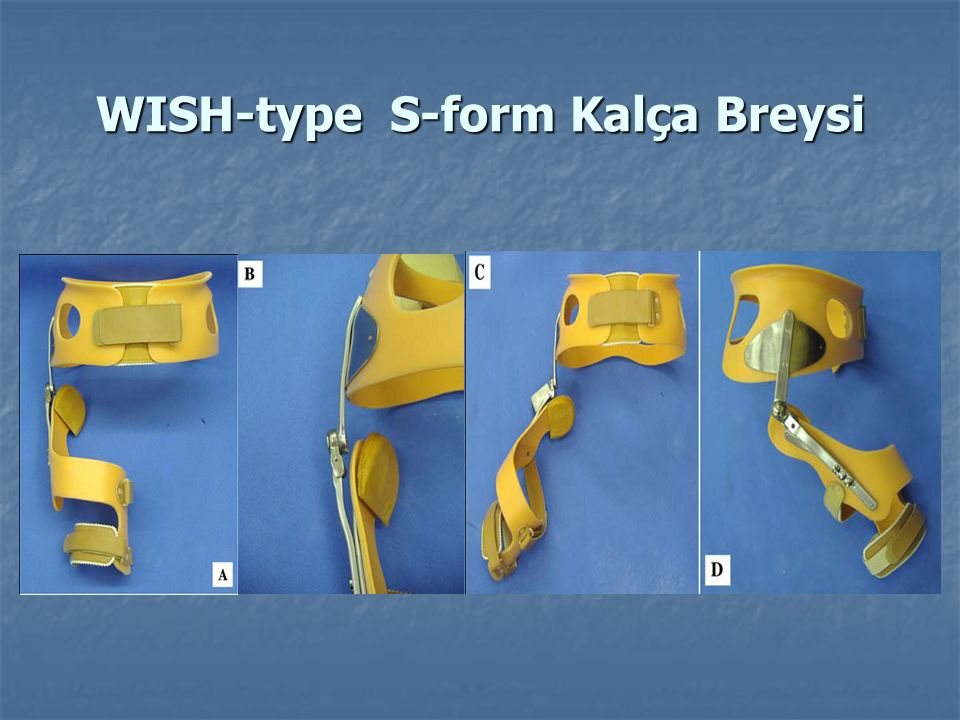 WISH-type S-form Kalça Breysi