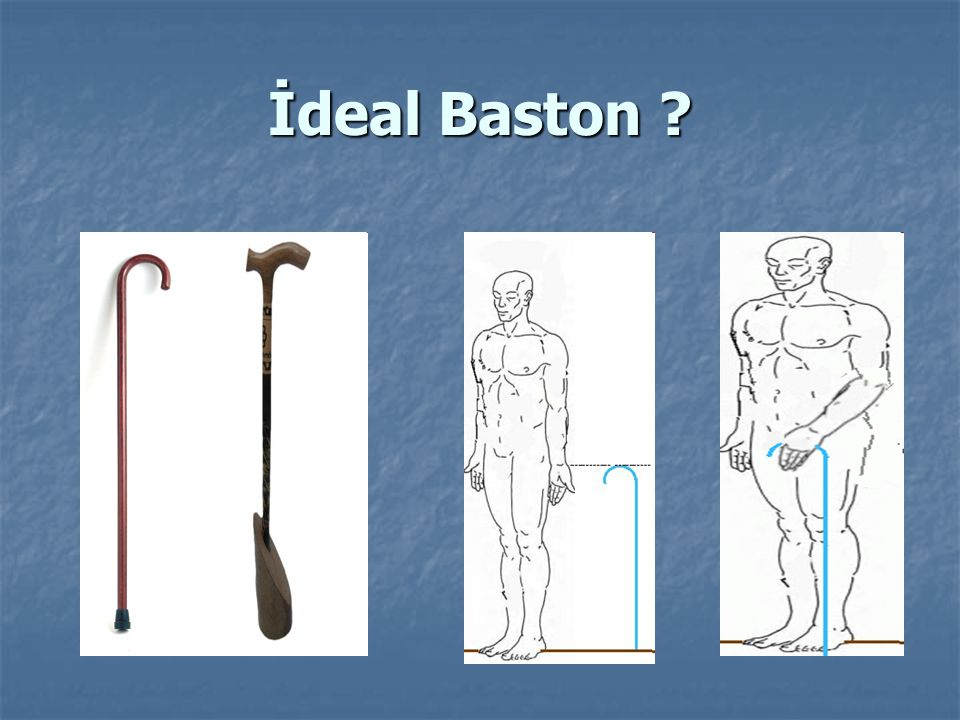 İdeal Baston
