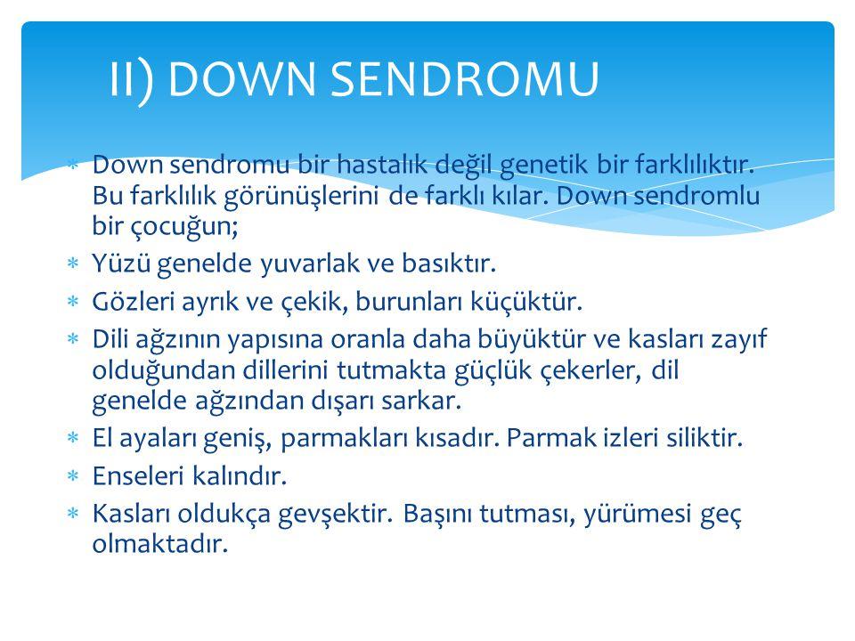II) DOWN SENDROMU Down sendromu bir hastalık değil genetik bir farklılıktır. Bu farklılık görünüşlerini de farklı kılar. Down sendromlu bir çocuğun;