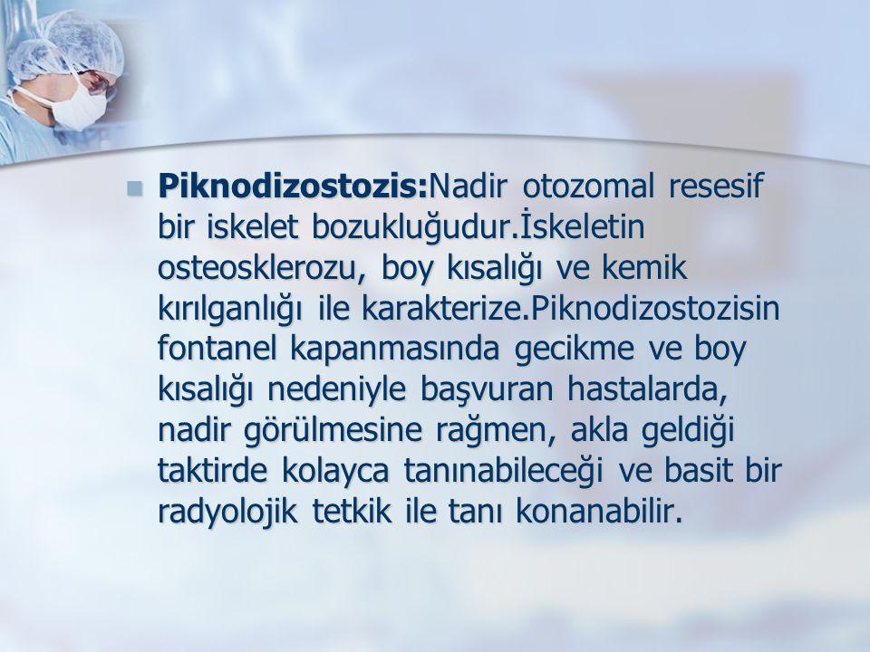 Piknodizostozis:Nadir otozomal resesif bir iskelet bozukluğudur