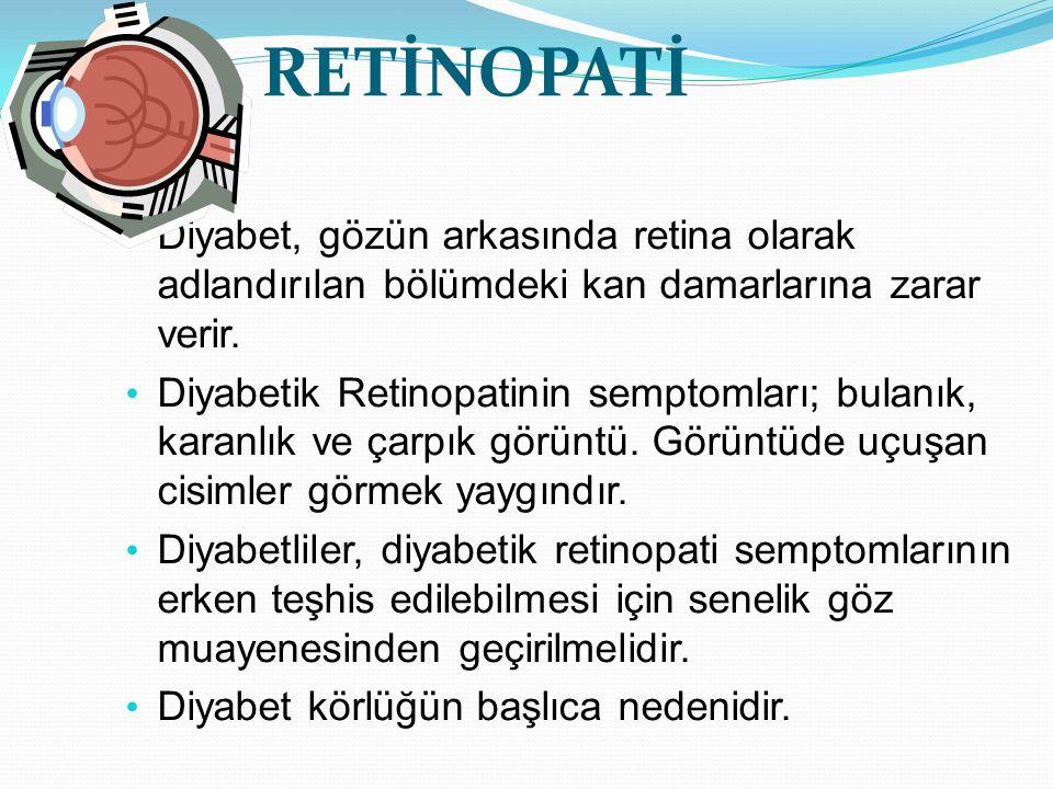 RETİNOPATİ Diyabet, gözün arkasında retina olarak adlandırılan bölümdeki kan damarlarına zarar verir.