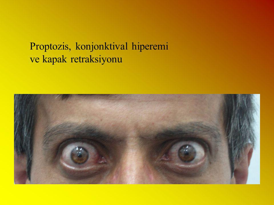 Proptozis, konjonktival hiperemi ve kapak retraksiyonu
