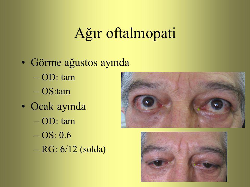 Ağır oftalmopati Görme ağustos ayında Ocak ayında OD: tam OS:tam