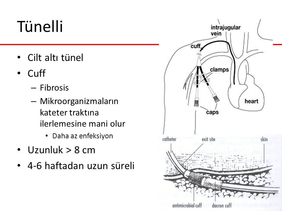 Tünelli Cilt altı tünel Cuff Uzunluk > 8 cm