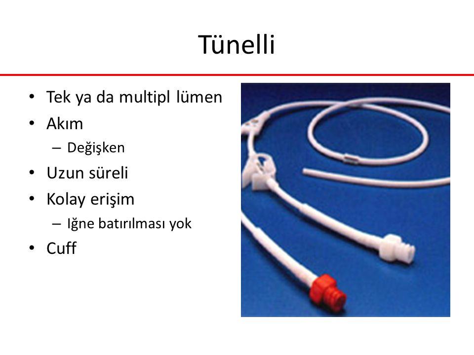 Tünelli Tek ya da multipl lümen Akım Uzun süreli Kolay erişim Cuff