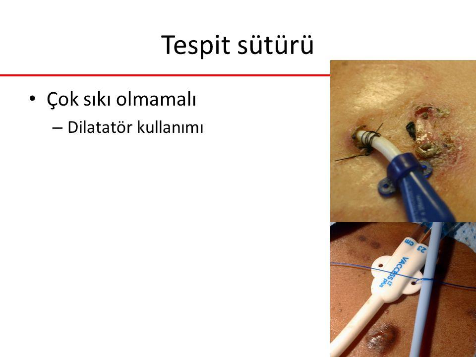 Tespit sütürü Çok sıkı olmamalı Dilatatör kullanımı