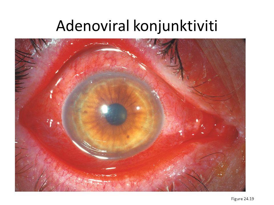 Adenoviral konjunktiviti