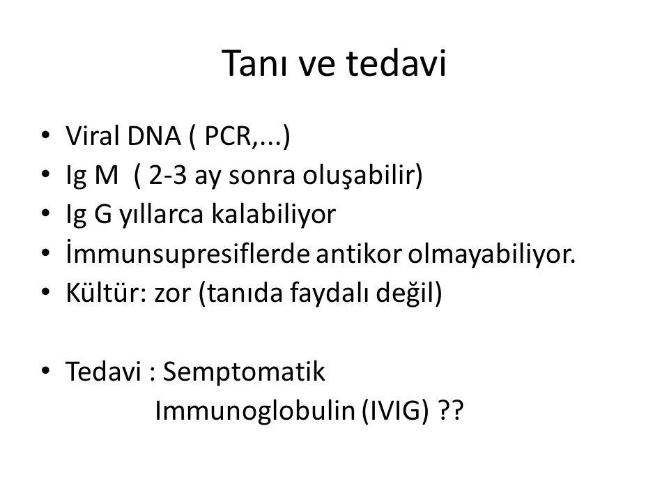 Tanı ve tedavi Viral DNA ( PCR,...) Ig M ( 2-3 ay sonra oluşabilir)