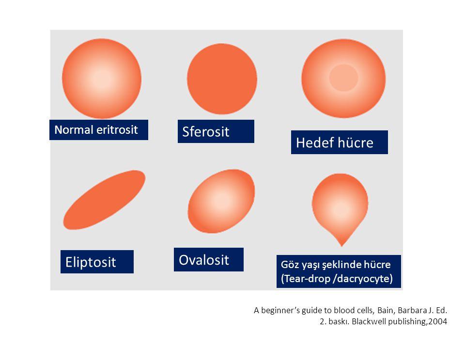 Sferosit Hedef hücre Ovalosit Eliptosit Normal eritrosit