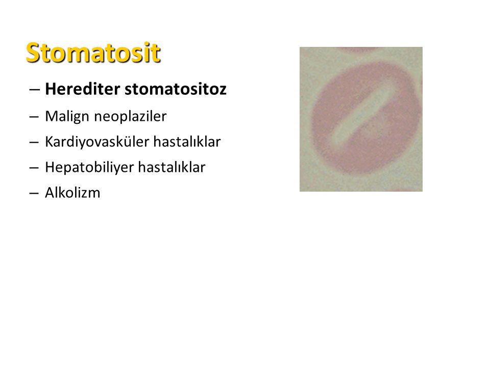 Stomatosit Herediter stomatositoz Malign neoplaziler