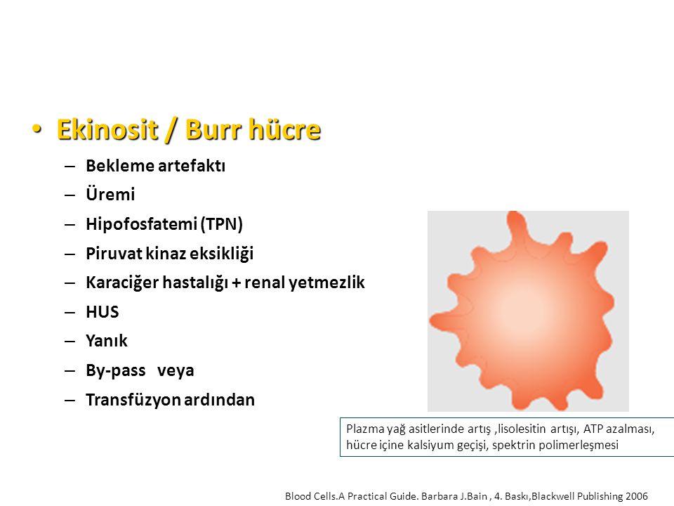 Ekinosit / Burr hücre Bekleme artefaktı Üremi Hipofosfatemi (TPN)