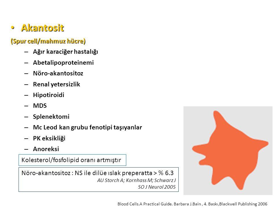 Akantosit (Spur cell/mahmuz hücre) Ağır karaciğer hastalığı