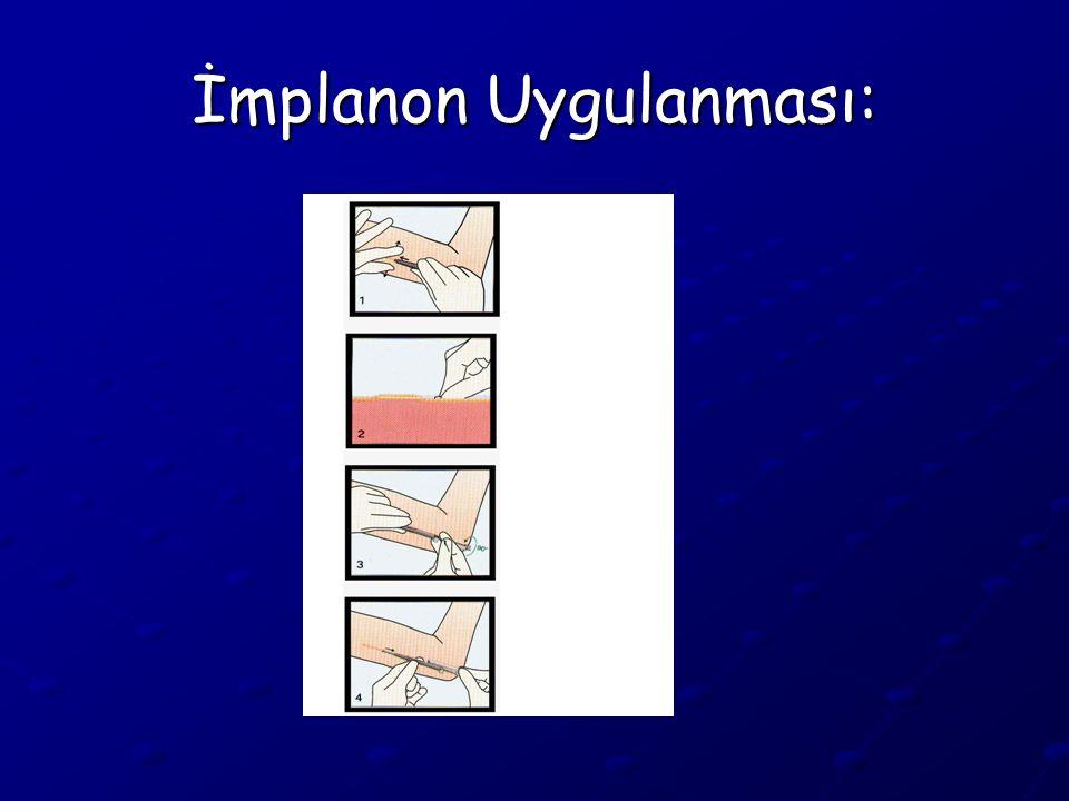 İmplanon Uygulanması: