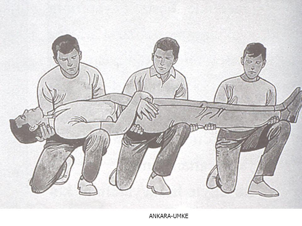 ANKARA-UMKE