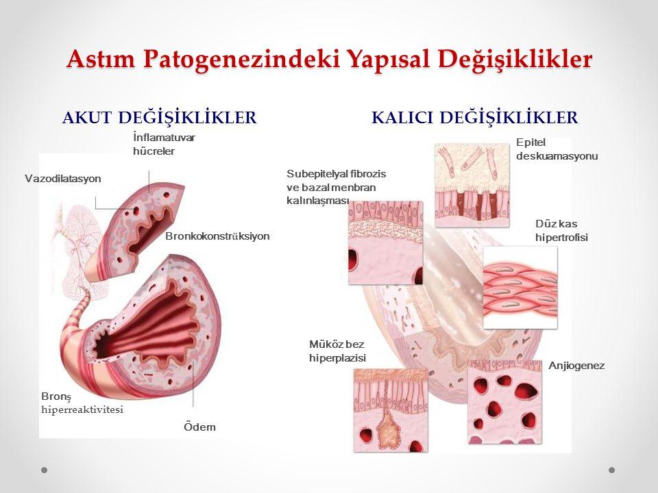 Astım Patogenezindeki Yapısal Değişiklikler