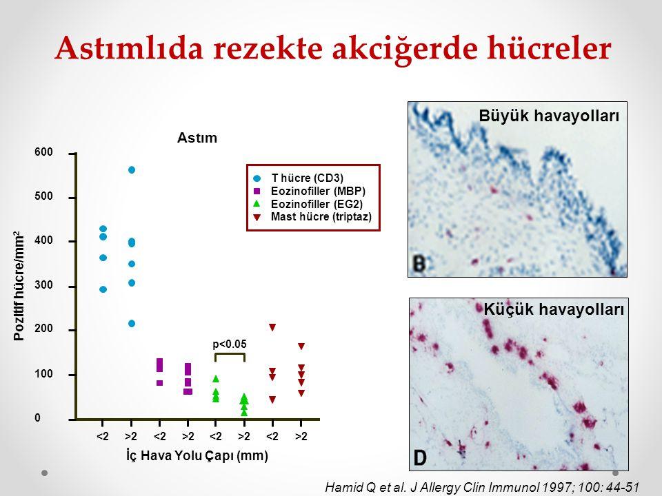 Astımlıda rezekte akciğerde hücreler