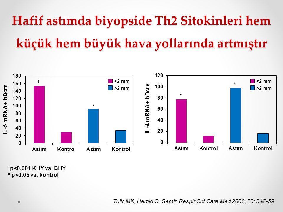 Hafif astımda biyopside Th2 Sitokinleri hem küçük hem büyük hava yollarında artmıştır